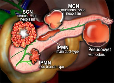 cysts on the liver picture 14
