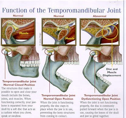 joint disorders picture 13