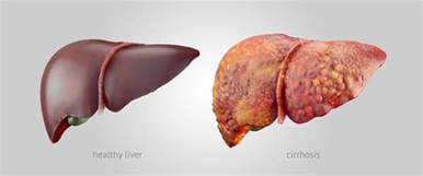 what side is the liver picture 17