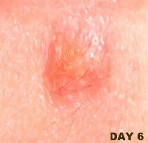 genital herpes sores picture 2