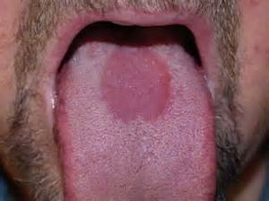 repeated yeast infections on tongue picture 1