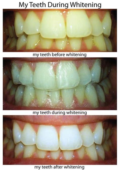whiten teeth light picture 9