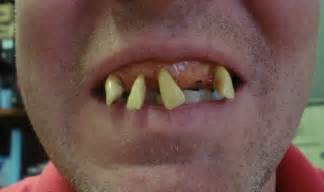 billy bob teeth picture 1