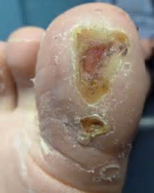 how to treat plantus warts picture 2