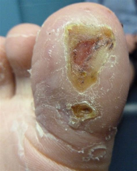 warts treatment picture 2