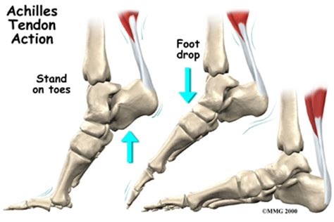 ankle joint effusion and ruptured achilles tendon picture 15