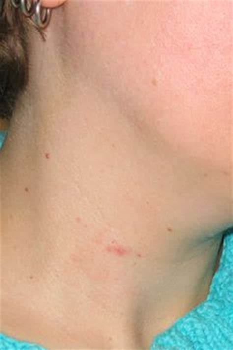 juice thyroid nodules picture 11