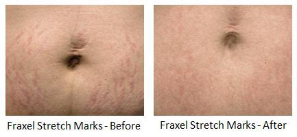 fraxel stretch marks pictures picture 11