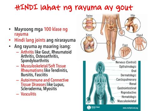 treatment for rayuma picture 1