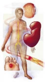 diabetics sypmtoms picture 6