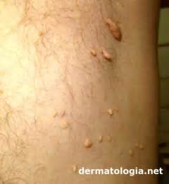 genital hair removal for men picture 11