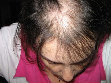 weight loss hair loss picture 9