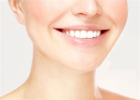 san diego teeth bleaching picture 10