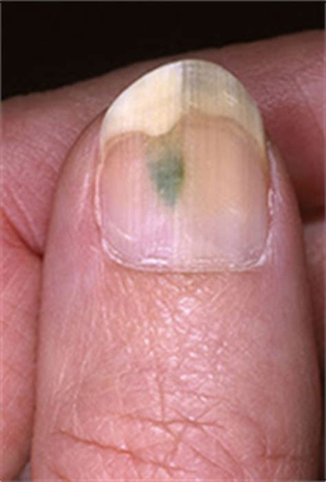 acrylic nail fungus picture 2