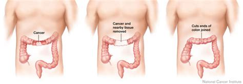 Top hospitals for treating colon cancer in new picture 13