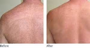 laser hair removal manhanttan picture 2