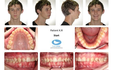 correcting h from overbite picture 5