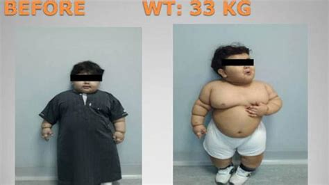 doctors weight loss recommendations for 9 year girls picture 3