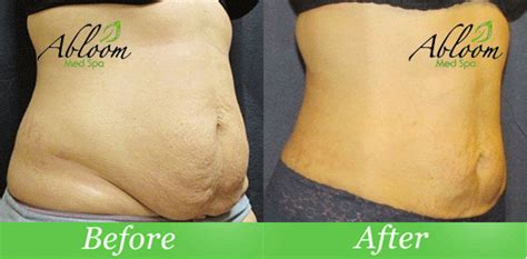 smart lipo before and after picture 7
