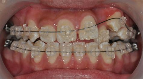 care of teeth pulling picture 17