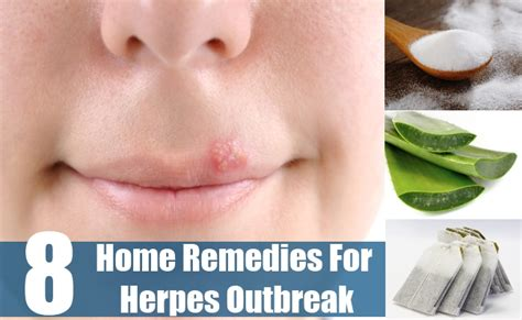developing cure for herpes picture 5