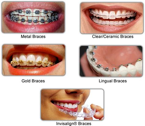 all kinds of teeth grillz and i want picture 1