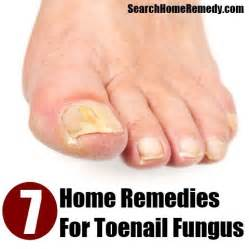 cures for toe nail fungus picture 6