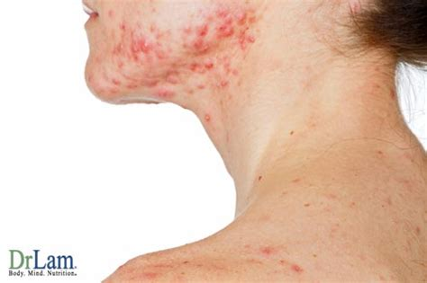 cortisol skin problems picture 1