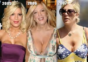 breast implants gone wrong picture 2