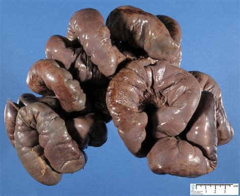 bowel infarction picture 1