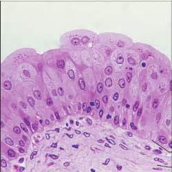type of epithelium that lines the bladder quizlet picture 7