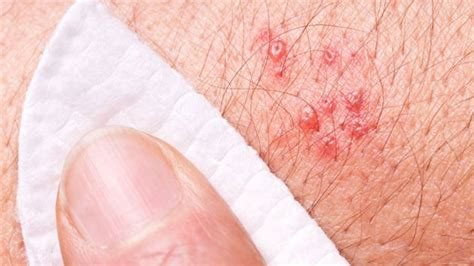 are pimples on the related to herpes picture 9