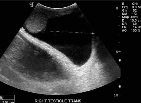 had ultrasound on testicular got sex picture 3
