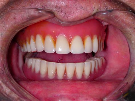 fales teeth picture 17