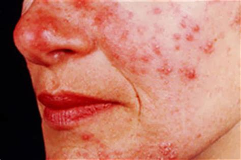 alcoholic, face acne and liver damage? picture 2