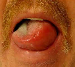 chronic skin hives articaria picture 10