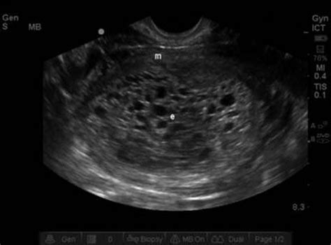 first trimester symptoms with h picture 10