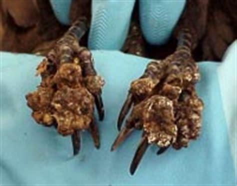 foot skin disease picture 2