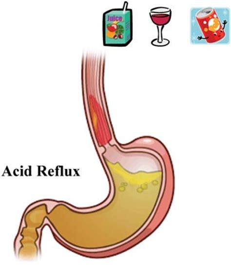 acid reflux medicine in philippines picture 7