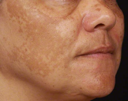discoloration of skin picture 13