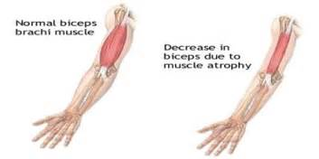causes and cures of muscle wasting picture 19