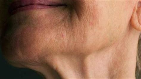 do older men have trouble keeping the skin picture 5