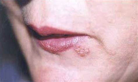 what does a herpes soar look like picture 4