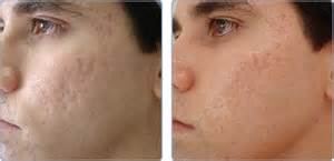 clear skin acne and laser center picture 2
