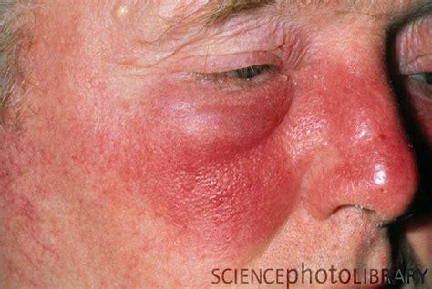 acne facial picture 1
