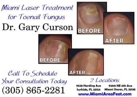 nail fungus laser az picture 3