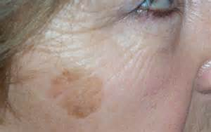 how to remove liver spots with wart remover picture 1