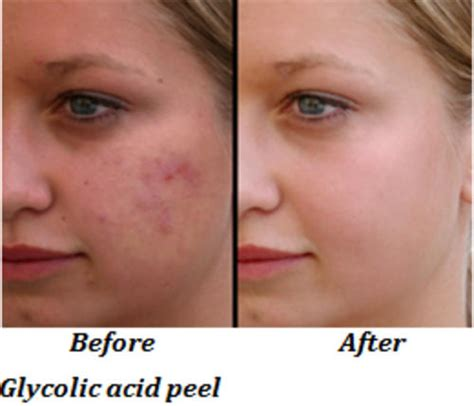 glycolic acid acne picture 1