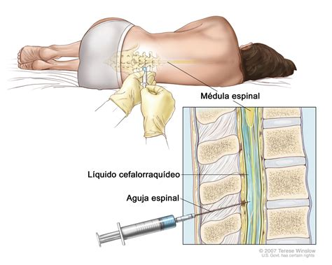 central nervous system injury skin rash picture 6