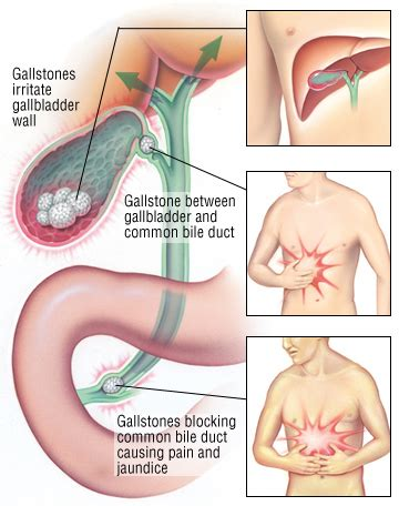 gall bladder incisional hernia symptoms picture 6
